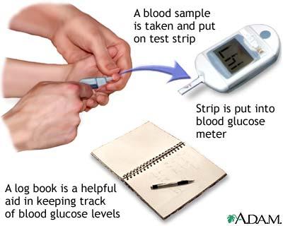 blood sugar testing machine without strips