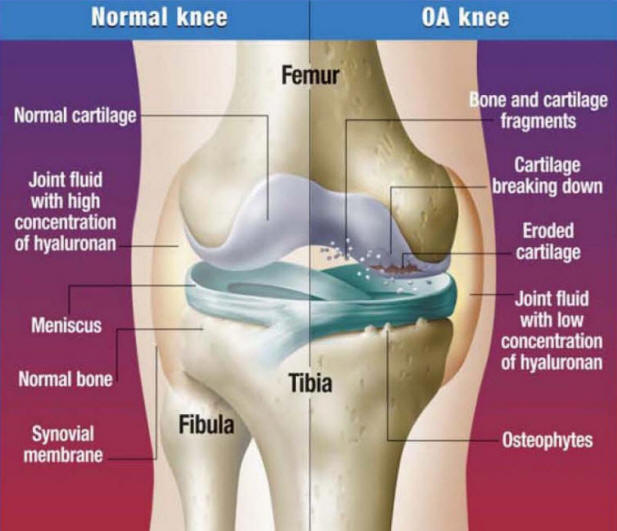 what age does arthritis occur