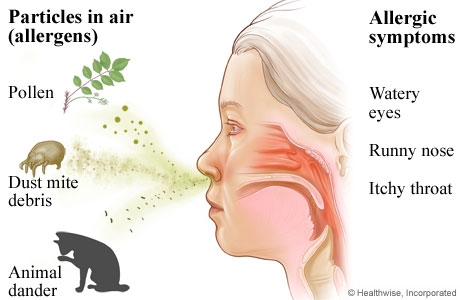 What is treatment for nose allergy